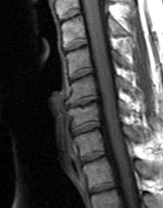 Cervical Degenerative Disc Disease